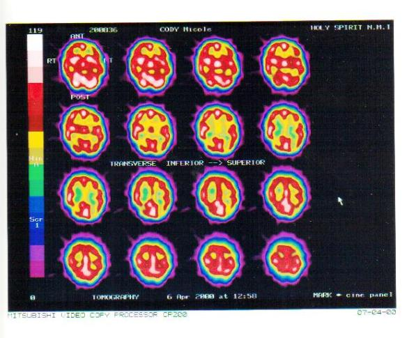SPECT Scan A