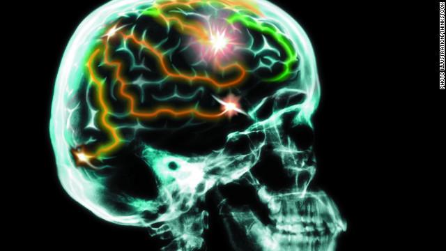 Improving brain function photo 5