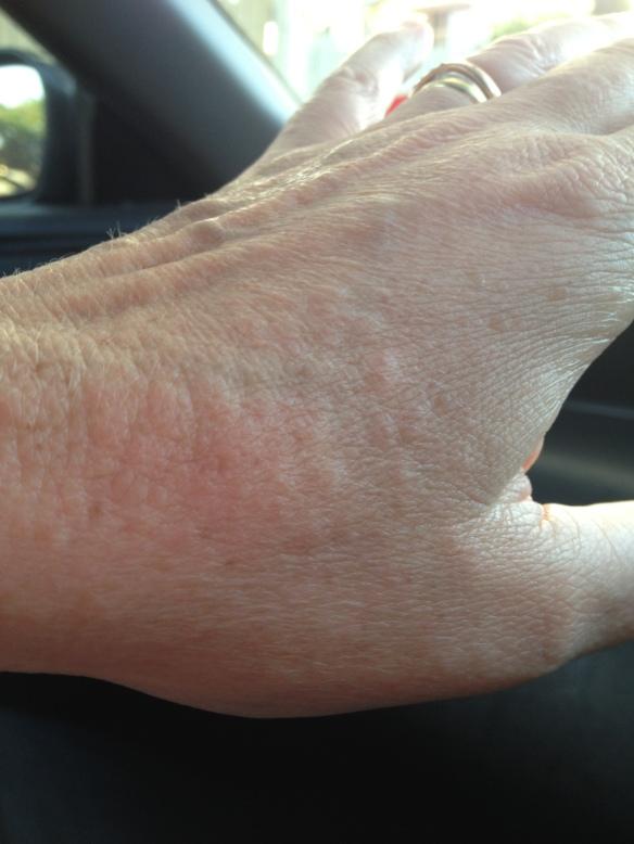 lyme rash hand